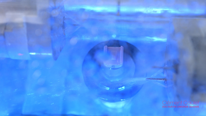 Conception et fabrication assisté par ordinateur CFAO au cabinet dentaire à Sébazac