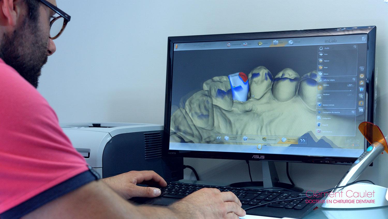 Images 3D pour une meilleure finition dentaire chez Clément Caulet